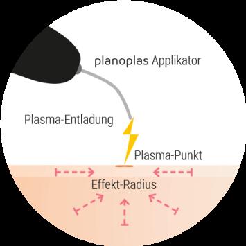 plasma-pen-behandlung-was-ist-das