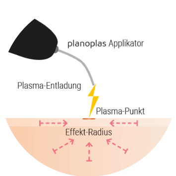 plasma-pen-made-in-germany