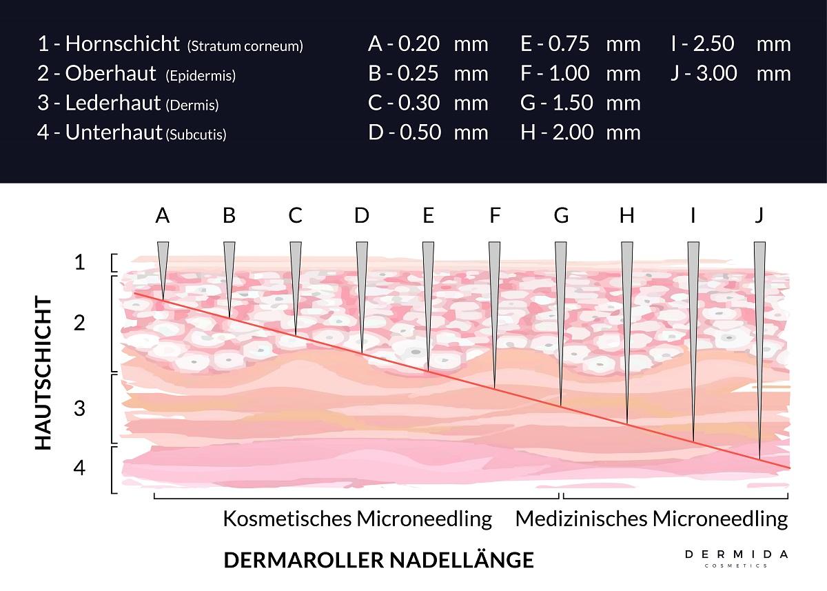 medizinisches-microneedling-vs-microneedling